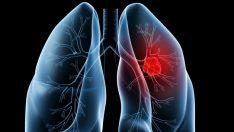 'Akciğer tansiyonunu diğer hastalıklarla karıştırmayın'